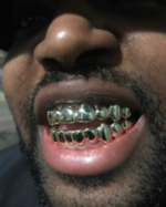 180px-Top_and_bottom_custom_grillz_14k_gold.png